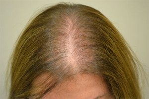 Hair Loss Women