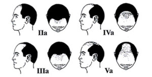 Hamilton Hair Loss Pattern Male