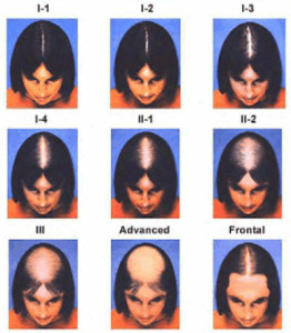 Ludwig Hair Loss Pattern Female